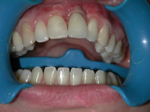 implantat-schneidezahn-nachher