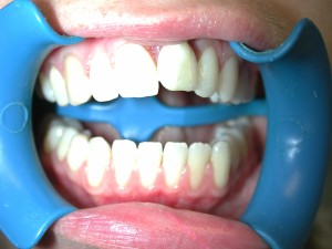 implantat-schneidezahn-vorher-1