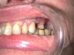 implantate-backenzahn-vorher-1