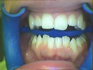 six-month-smile.vorher-1