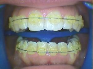 six-month-smile.vorher-3